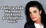 Zašto je koža Michaela Jacksona promijenila boju?