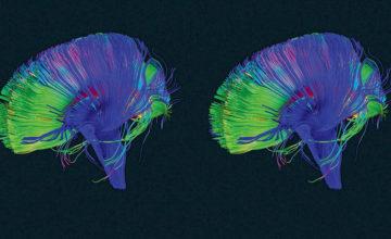 Jeste li znali da vaš mozak ima svojevrsnu tipku za brisanje?