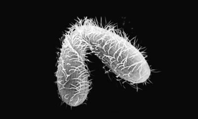 Tetrahymena-thermophila