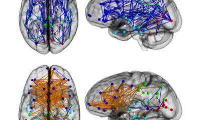 Povezanost neurona u mozgu muškarca (gore) i mozgu žene (dolje). (Credit: Ragini Verma, Ph.D., Proceedings of National Academy of Sciences)