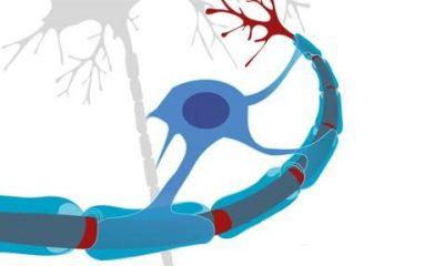 protein-neuron